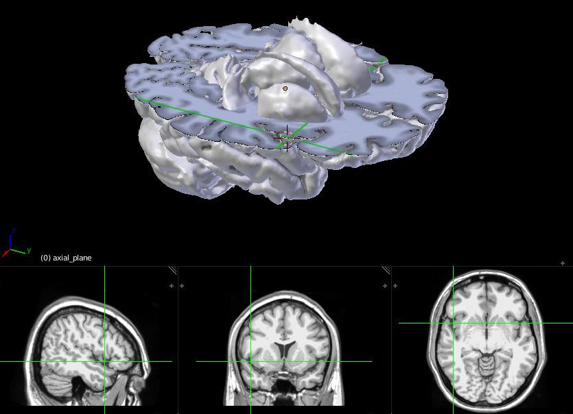 Neuroanatomy 3D sliced brain with MRI scans