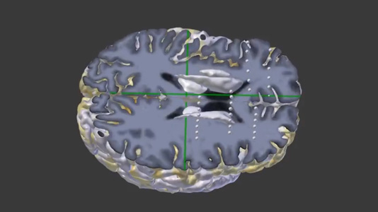MMVT 3D slicer video thumbnail