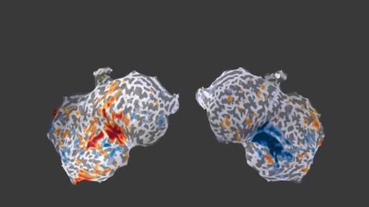 MMVT Inflating brain video thumbnail