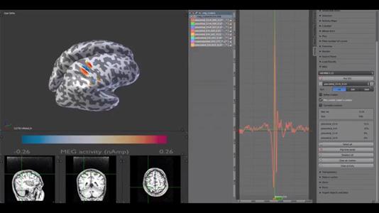 MMVT MEG clusters video thumbnail