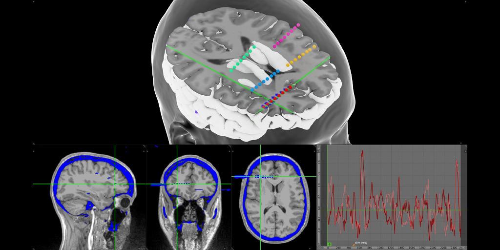 Neuroimaging | MMVT - Multi-Modality Visualization Tool