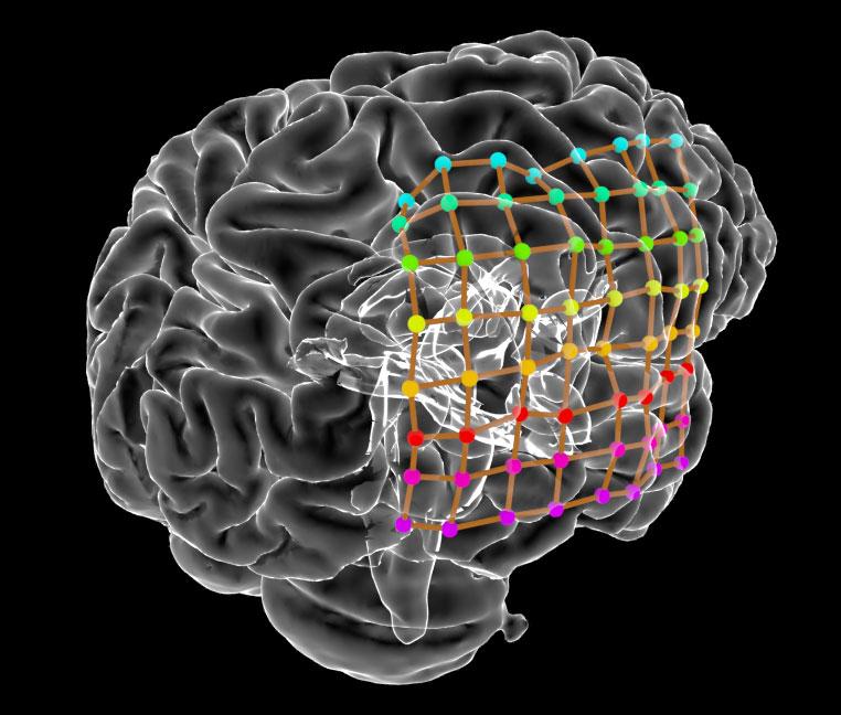 3D ECOG displayed on rendered brain.