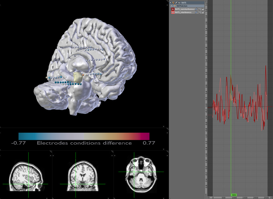 Depth electrodes with 3D brain display showing data from selected electrode and interactive MRI scans.