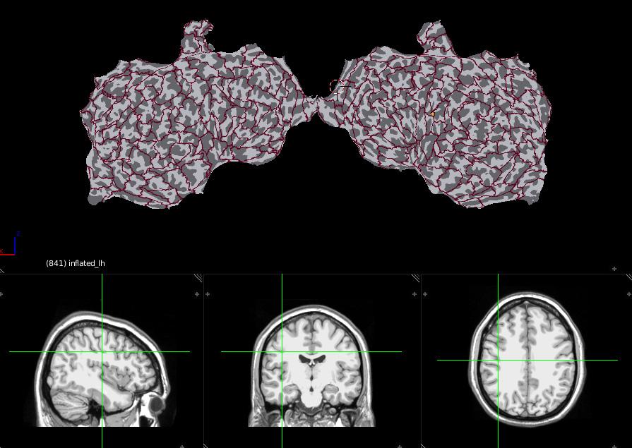 Neuroanatomy flat brain with labels contours and MRI