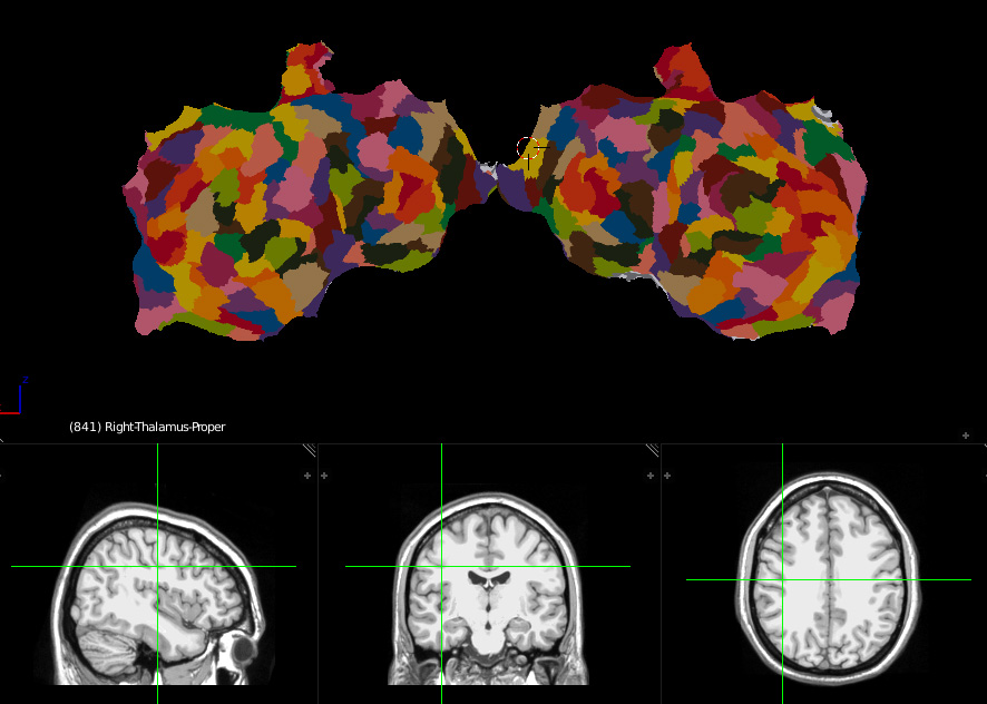 Neuroanatomy flat brain with labels and MRI