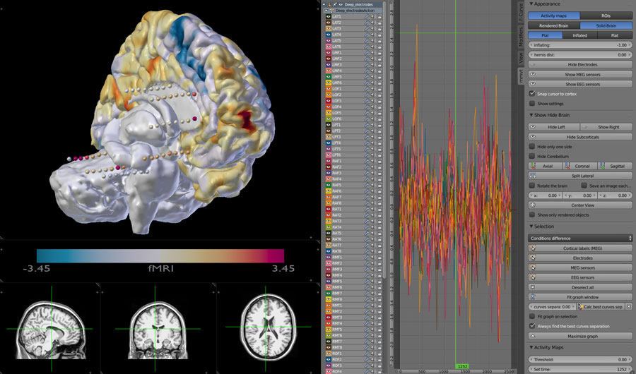 Depth Electrodes and fMRI on 3D brain. Including MRI scans and data from the electrodes.