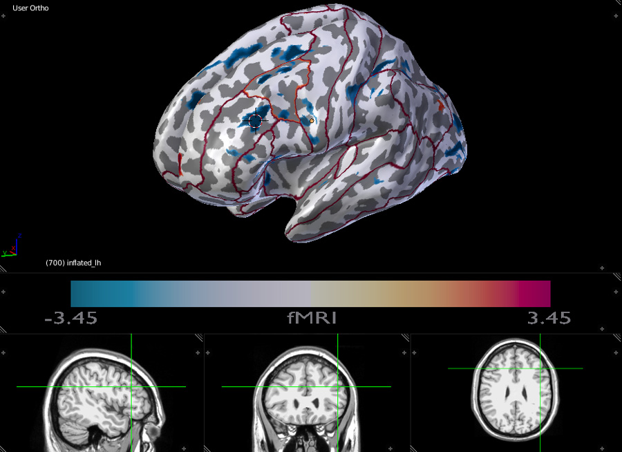 fMRI 3D inflated brain with laus125 labels contours and interactive MRI scans.