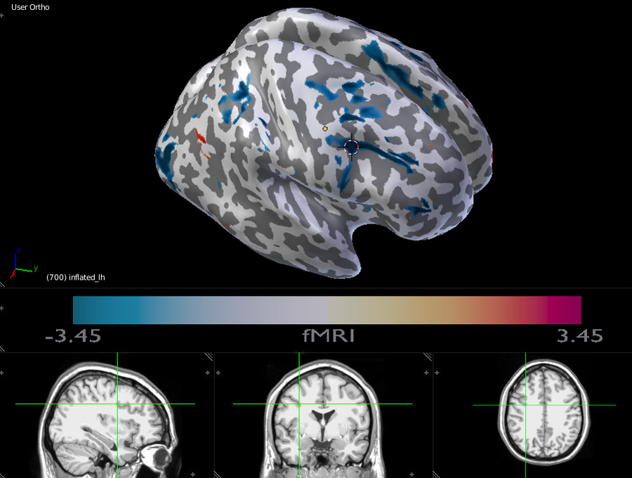 fMRI 3D inflated brain with interactive MRI scans display.