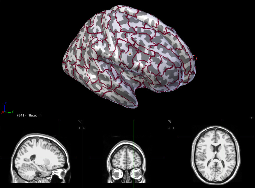 Neuroanatomy inflated brain with labels contours and MRI