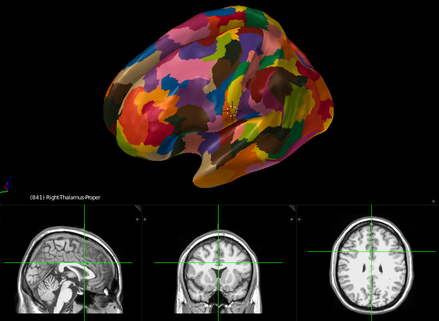 Neuroanatomy inflated brain with labels and MRI