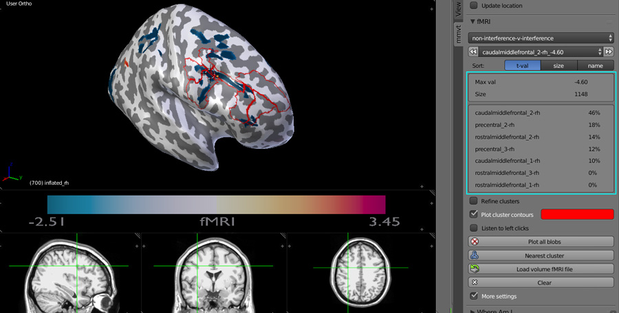 fMRI 3D inflated brain with information about the selected blob's clusters and interactive MRI scans display.