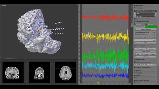 MMVT Depth Electrodes video thumbnail