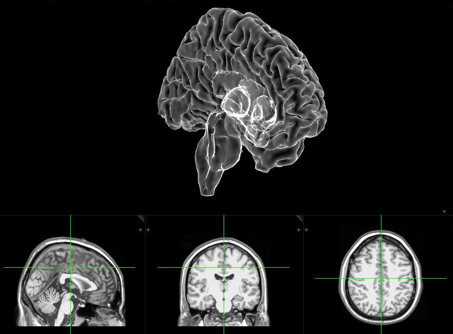Neuroanatomy rendered left hemisphere and MRI display