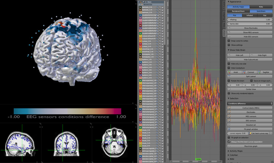 MEG and EEG ROIS ts data wtih pial surface display on MRI scans