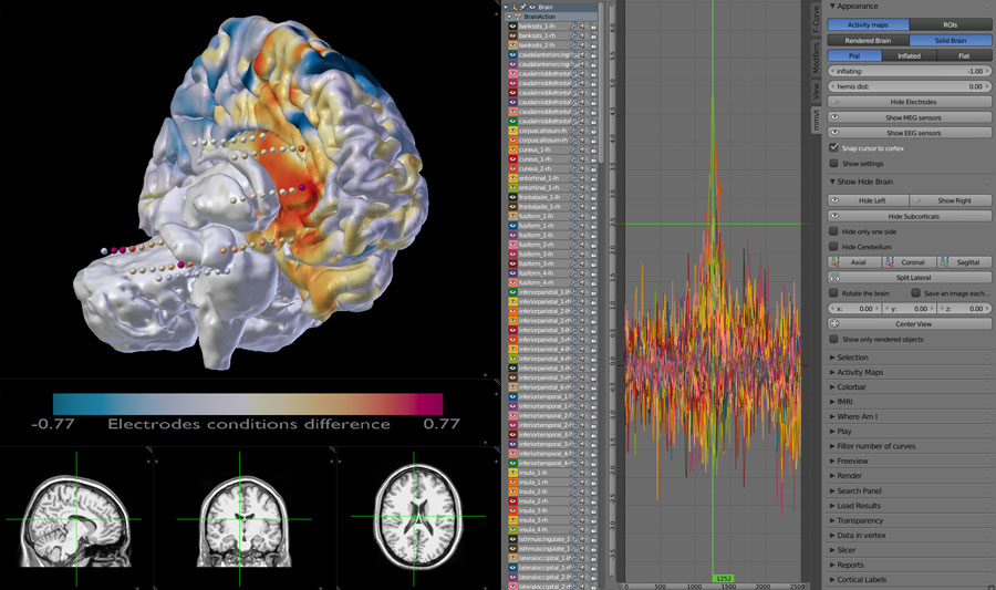 MEG aand Depth Electrodes 3D brain dispay with MRI scans and data from the electrodes.