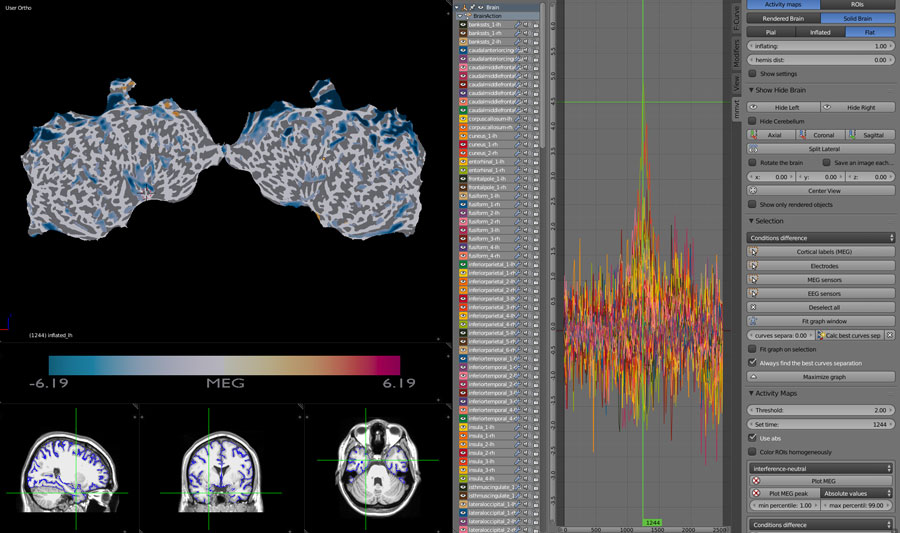 MEG on flat brain with pial surface display on MRI scans