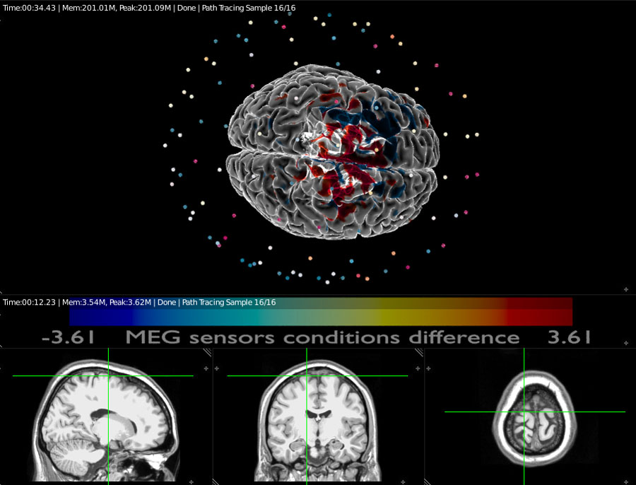 MEG and MEG sensors on 3D rendered brain with MRI display