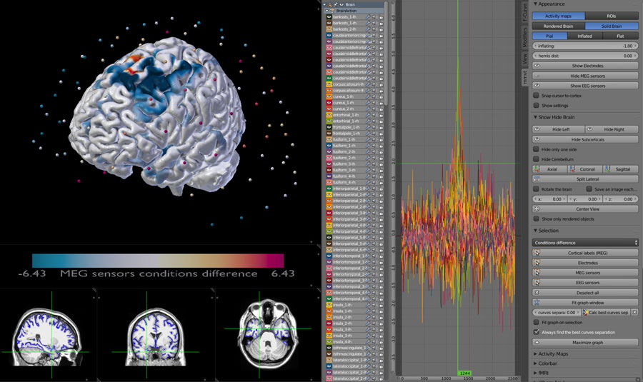 MEG sensors ROIS and pial surface display on MRI scan