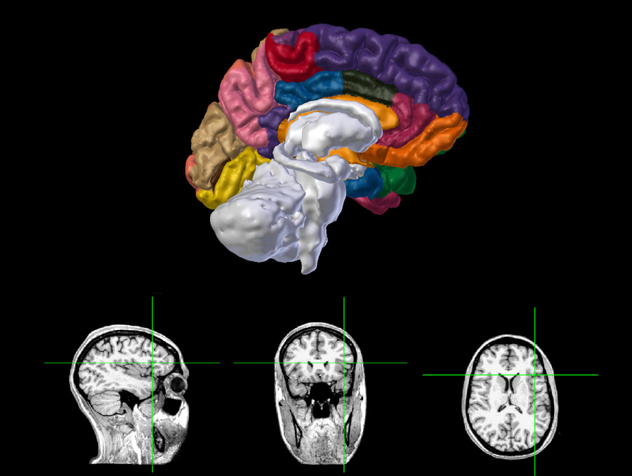 Neuroanatomy left hemisphere with labels and MRI display