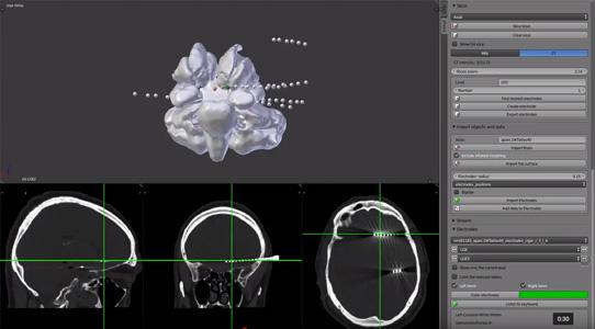 MMVT selecting depth electrodes video thumbnail