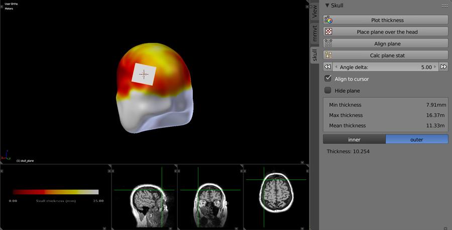 Neuroanatomy 3D skull thickness with MRI display